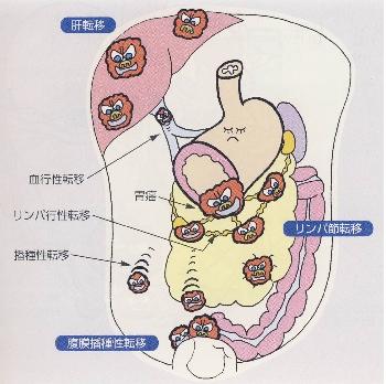 出典:http://pacivip.umin.jp/pacivip.html